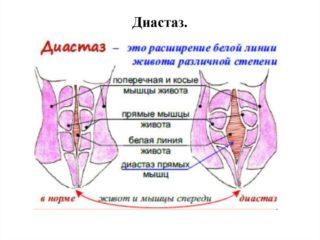 Упражнения при диастазе прямых мышц живота после родов