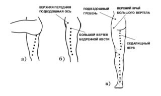 Как делать массаж при защемлении седалищного нерва