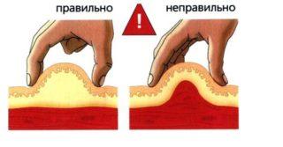 Как правильно ставить укол в живот