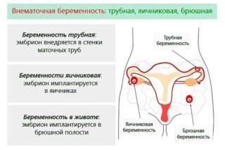К чему боль внизу живота у женщин при беременности на ранних сроках