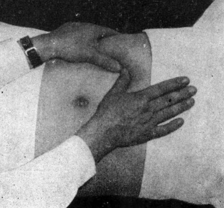 Какие заболевания помогает диагностировать симптом Мейо - Робсона