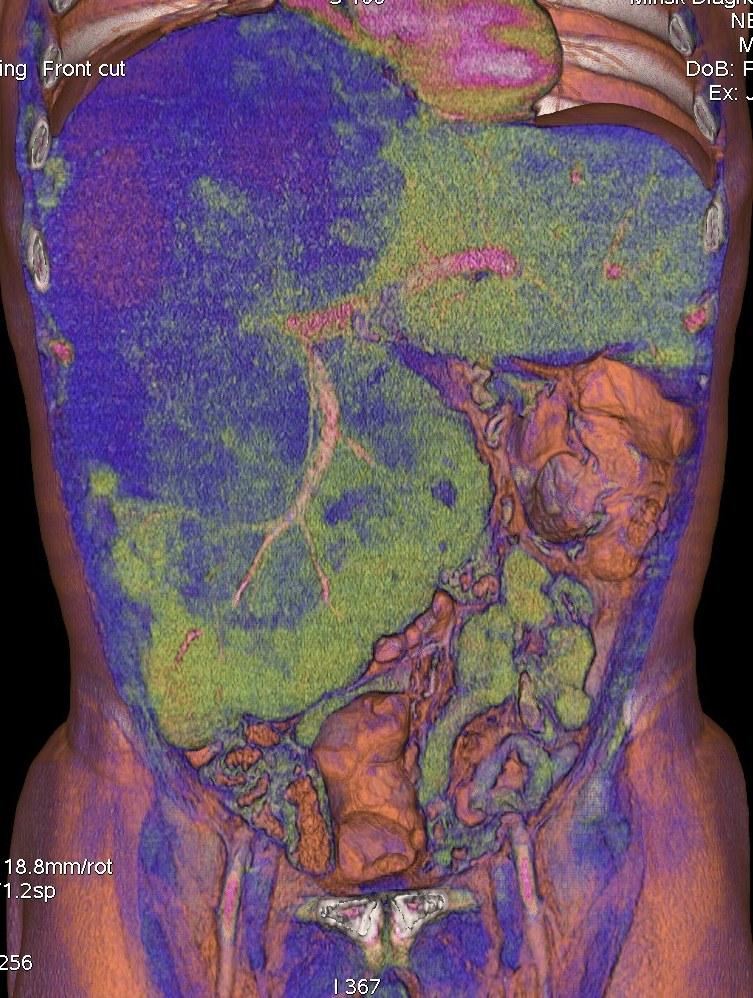 Метастазы в забрюшинные лимфоузлы прогноз жизни