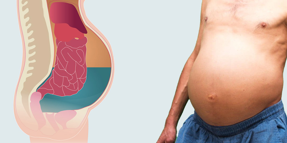Асцит брюшной полости: причины возникновения, симптомы и лечение