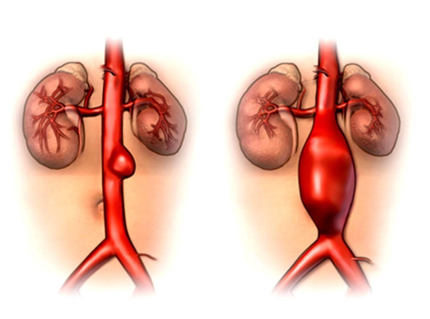 Аневризма брюшной аорты разорванная