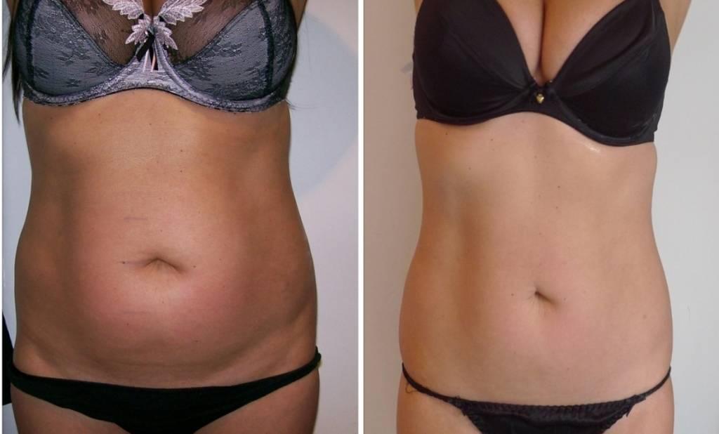 Сколько стоит убрать жир с живота и боков хирургическим путем