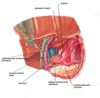 Внеорганные забрюшинные опухоли