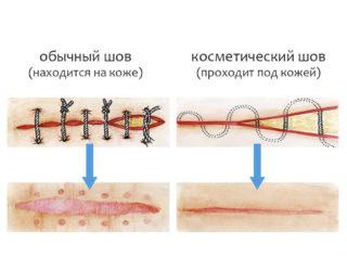 Обработка швов при полостной операции. Сколько заживает швов после операции на животе. Почему шов после операции твердый