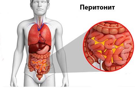 Восстановление после перитонита