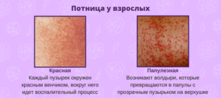 Сыпь на животе у мужчин и женщин: причины, диагностика, лечение и профилактика