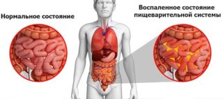 Диета после диффузного перитонита