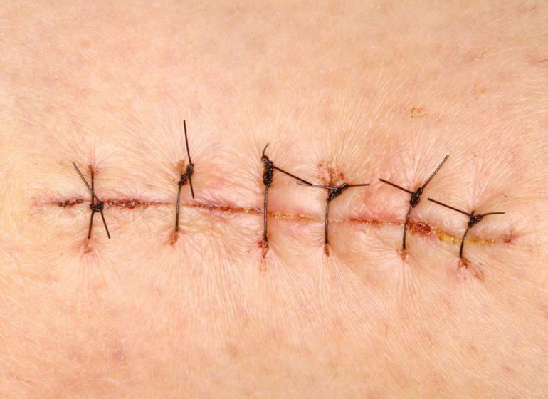 Шов после операции на животе: разновидности, этапы заживления, обработка и повторное наложение