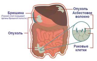Как проводится лечение мезотелиомы брюшины