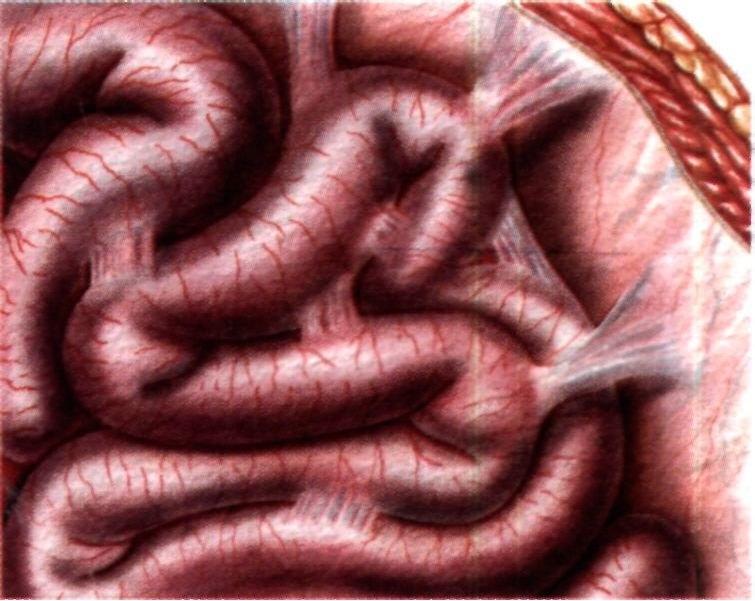 Чем опасен спаечный процесс в брюшной полости