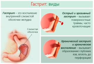 Боль и жжение в левом боку