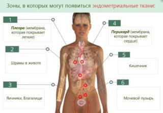 Эндометриоз желудка симптомы и лечение