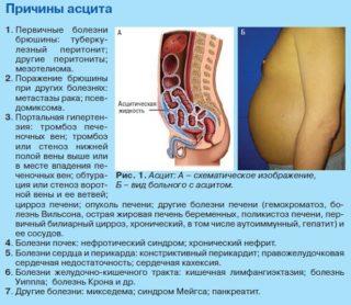 Асцит при онкологии прогноз