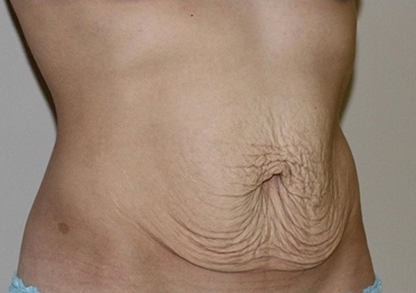 Как убрать живот после похудения