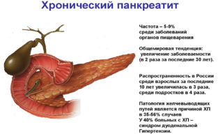 Тошнота и боль под ребрами слева