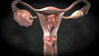 Опухоли в половых органах приводят к болевым ощущениям и застою мочи