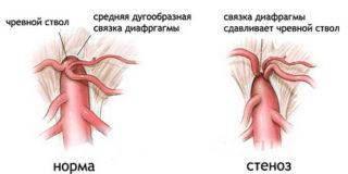 Что представляет собой стеноз чревного ствола брюшной аорты