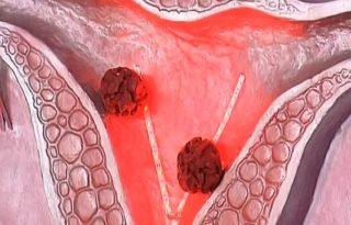 Внутренние опухоли удаляют хирургическим путем