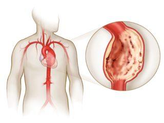 Аневризма аорты может быть первичной причиной появления неврита