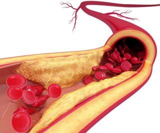Влияние атеросклеротической бляшки на кровоток