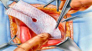 Какие антибиотики после операции пупочной грыжи