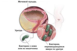 Способ проникновения бактерий и микробов в женскую уретру