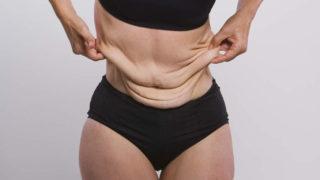 Причиной появления грыжи живота может быть резкое похудение