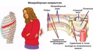 Болит в левом боку под ребрами спереди отдает в лопатку