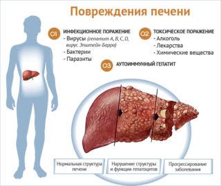 Повреждения печени при гепатите