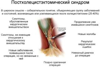 Болит правое подреберье желчный удален