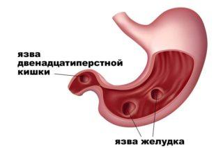 Боль в животе, понос и температура у взрослых: причины, первая помощь и профилактика