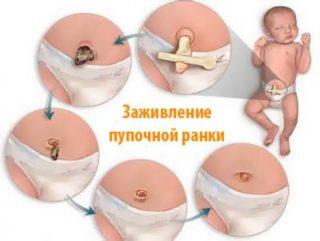 Что делать, если у новорожденного ребенка или грудничка выпячивается пупок и торчит наружу