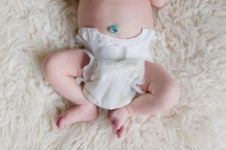 Состояние пупочной ранки у новорожденного в норме