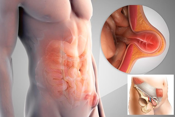 Грыжа живота лечение народными средствами с помощью операции