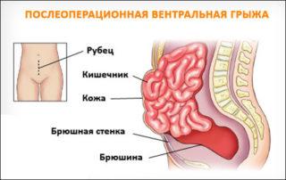 Послеоперационная грыжа брюшной полости: лечение без операции или удаление