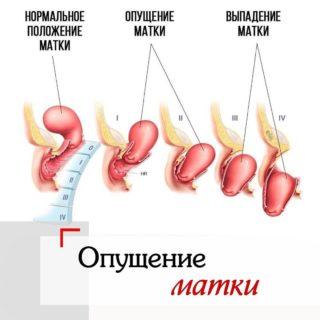 Сорвал желудок симптомы у мужчин