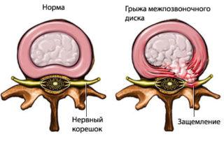 Ноющая боль в грудной клетке посередине что
