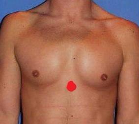 Ощущение пульсации в грудной клетке
