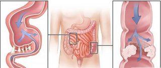 Органы брюшной полости человека: местоположение и роль