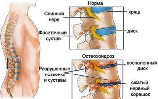 Опоясывающая боль в области желудка и спины: 8 заболеваний