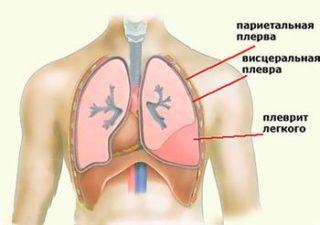 Сдавливает грудную клетку и тяжело дышать: причины и лечение