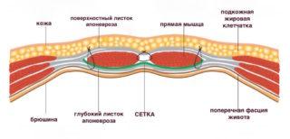 Хирургическая сетка для грыжи - как использовать полипропиленовую сетку после удаления грыжи