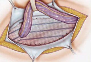 Послеоперационная грыжа на животе Вс о лечении грыжи