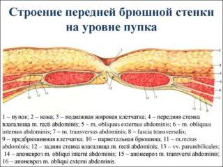 Можно ли сорвать пупок симптомы у мужчин и женщин