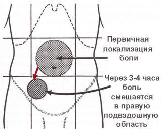 Опоясывающая боль в животе и спине причины