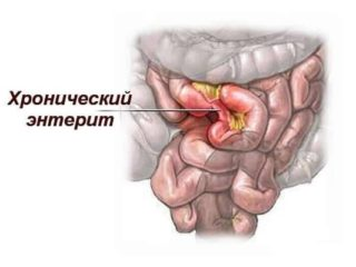Болит у пупка внутри