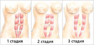 Пупочная грыжа после родов: лечение, операция, симптомы, что делать, как убрать, как выглядит